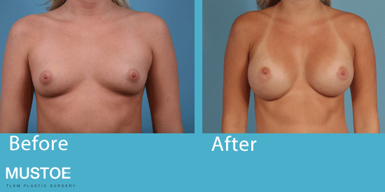 See before-and-after images of breast augmentation patients in Chicago.