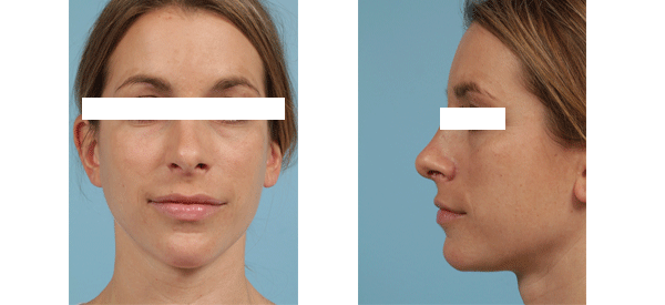 Female rhinoplasty results from Dr. Thomas Mustoe in Chicago.