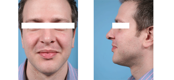 See male rhinoplasty patient photos from Dr. Thomas Mustoe in Chicago.