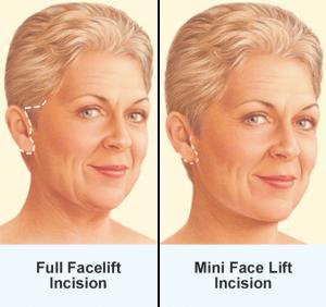 facelift diagram