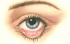 Lower Eyelid Surgery Diagram