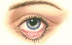 Lower Eyelid Surgery Diagram