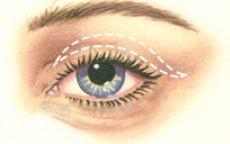 Upper Eyelid Surgery Diagram