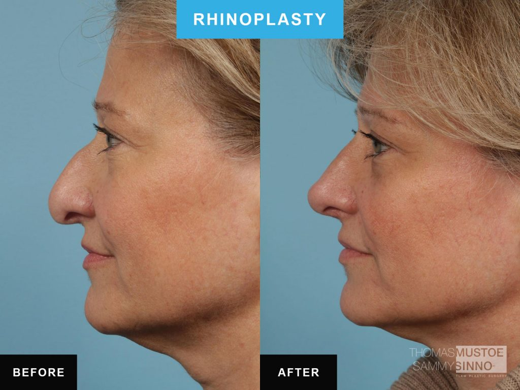Chicago patient B&A - Rhinoplasty - Elevating the tip of the nose