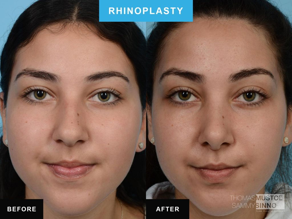 Rhinoplasty by Dr. Mustoe Case 586 Before & After View #1 | Chicago, IL | TLKM Plastic Surgery