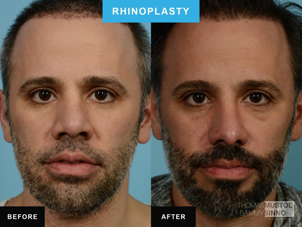 Chicago Rhinoplasty by Dr. Sammy Sinno - Narrowing the bridge - B&A