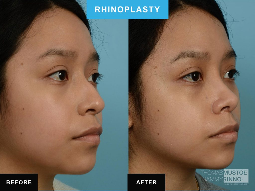 Chicago patient B&A - Rhinoplasty - Elevated tip of nose - Dr. Sinno