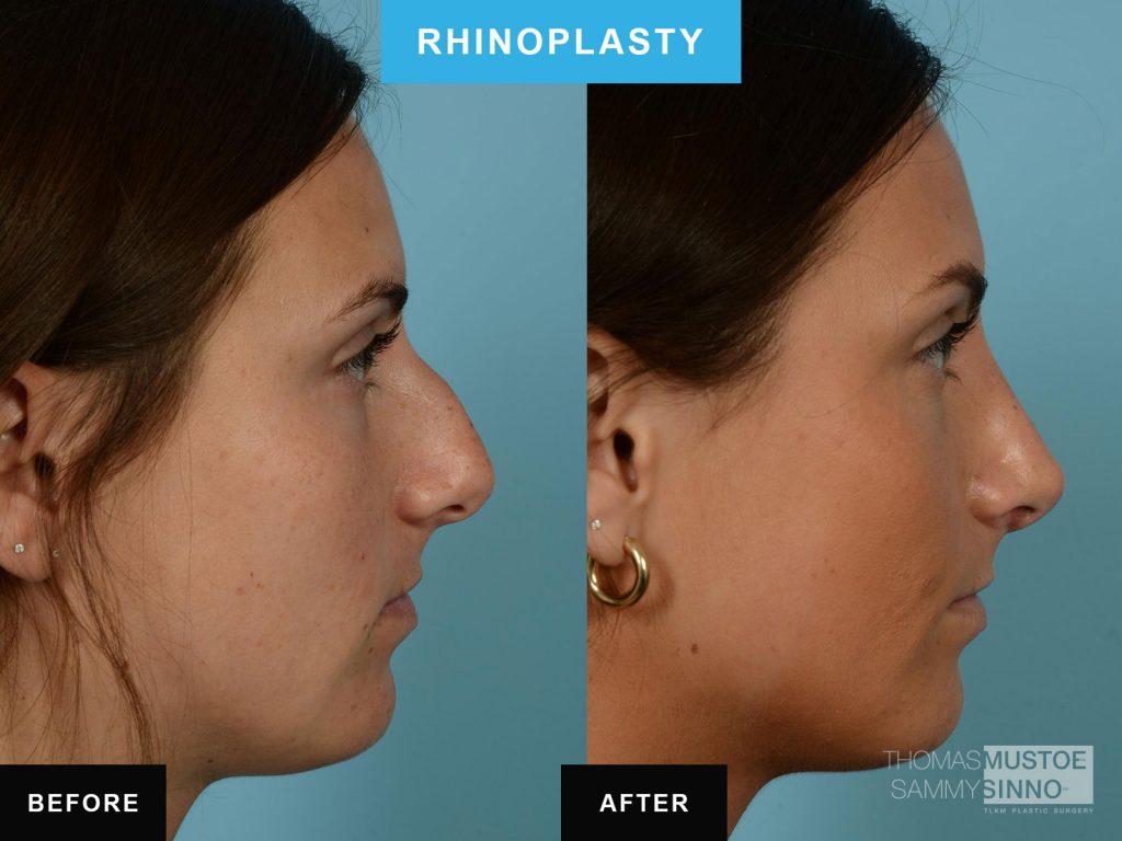 Chicago rhinoplasty B&A - Dorsal Hump - Dr. Sinno