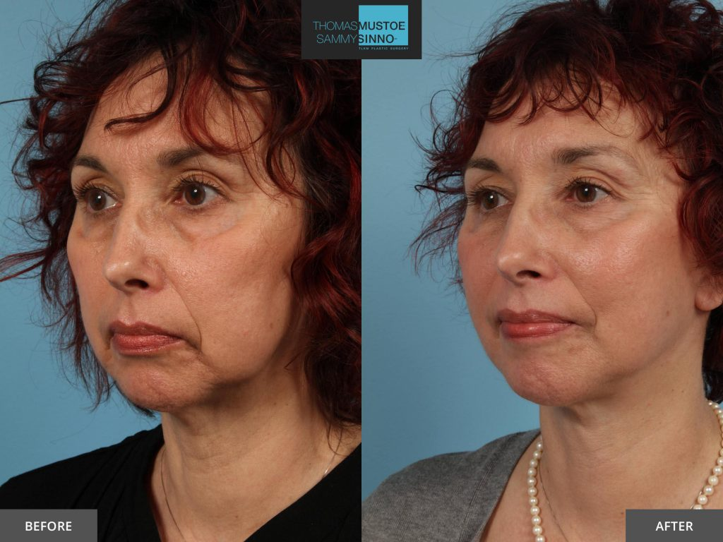 Chicago Facelift Before and After